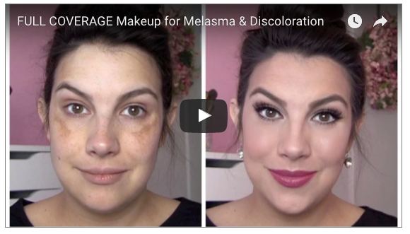 5 amazing melasma makeup youtube tutorials melasma tutorials on youtube solutioingenieria Choice Image