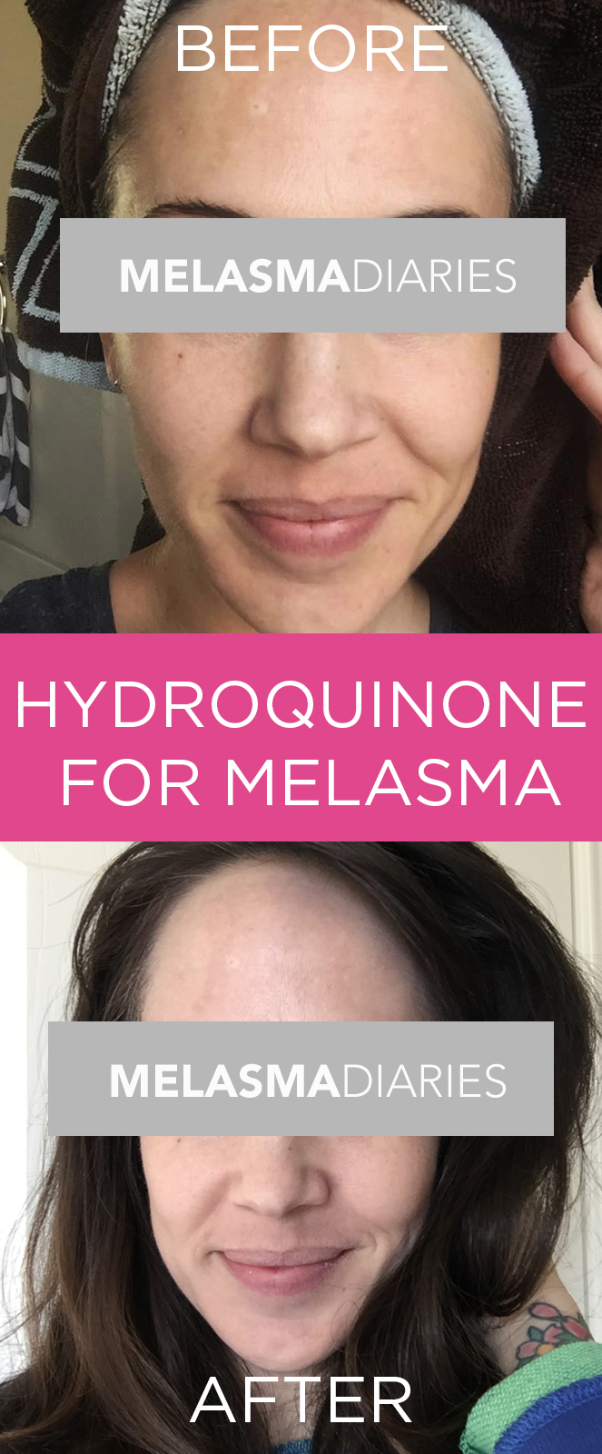 Wondering if you try hydroquinone to cure Melasma? Check out this before/after picture to see if it works.