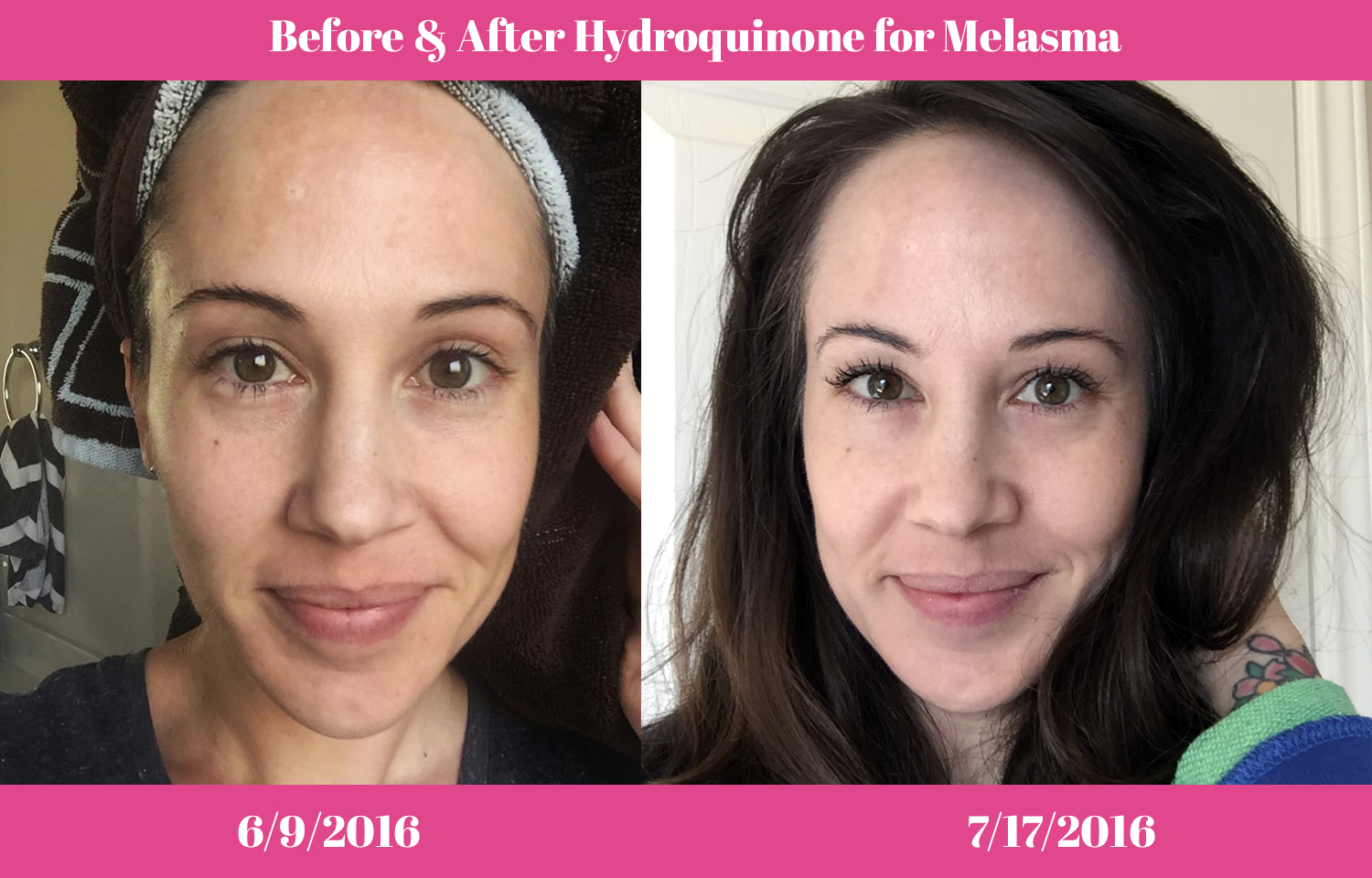 how to use hydroquinone 4